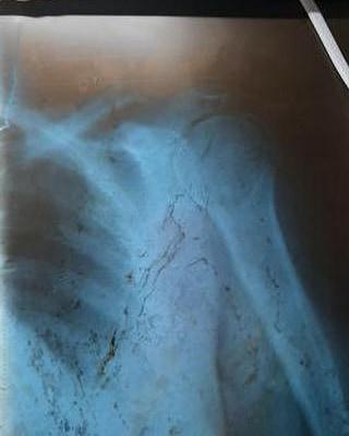 Треснувшая кость и 2 недели на больничном: результат поездки на маршрутке